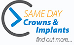 Same Day Crowns and Implants